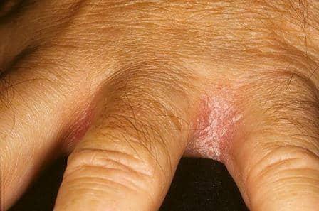 грибок в складках кожи