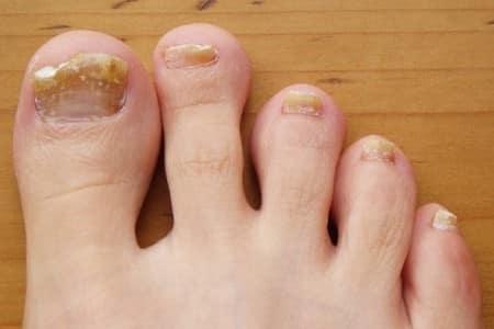 Пораженные ногти