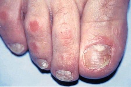 Комплексное лечение грибка на ногтях ног