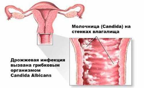 рисунок заболевания на половых органах девушки