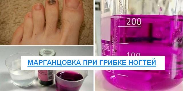 марганцовка против грибка ногтей на ногах