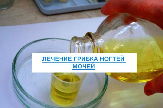 Лечение грибка ногтей мочей