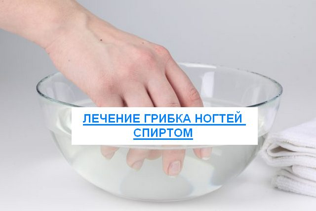 Лечение грибка ногтей спиртом