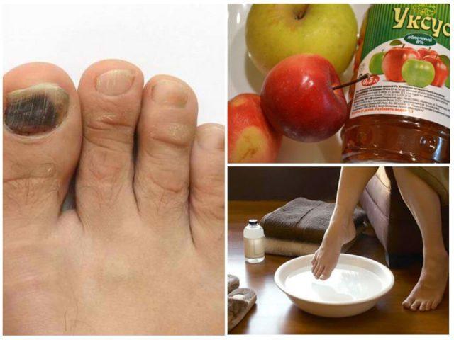ванночки для ног с яблочным уксусом от грибка ногтей