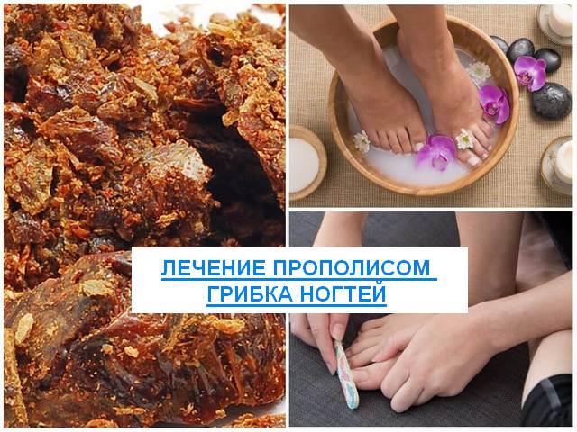 Лечение прополисом грибка ногтей