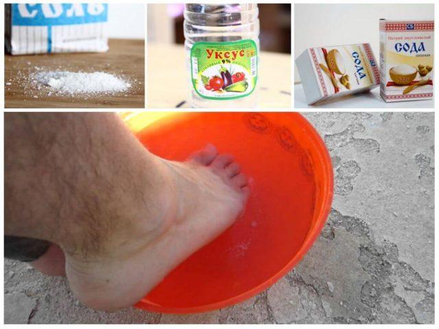ванночки для лечения грибка ногтей на ногах