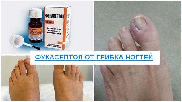 фукасептол от грибка ногтей отзывы