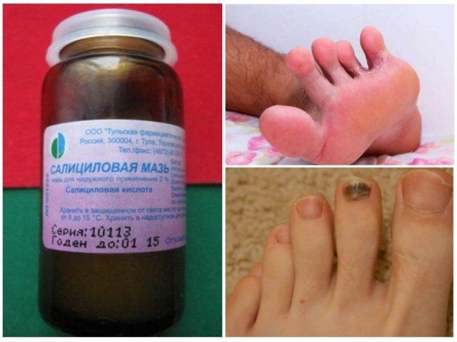 салициловая кислота от грибка ногтей на ногах отзывы