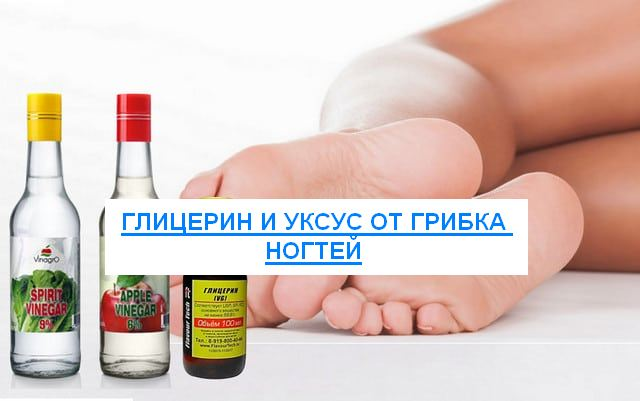 глицерин и уксус от грибка ногтей отзывы