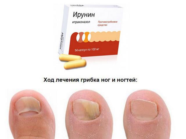 инурин от грибка ногтей инструкция