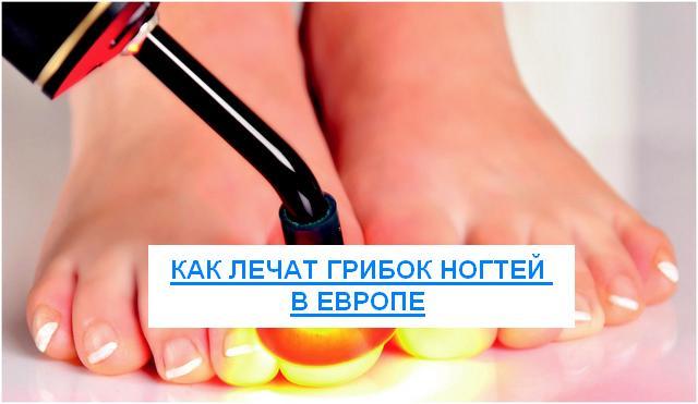 чем лечат грибок ногтей в европе