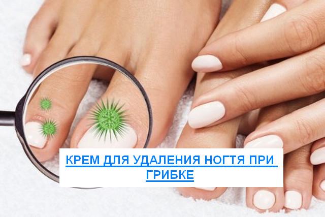 крем для снятия ногтя при грибке