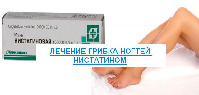 лечение нистатином грибка ногтей