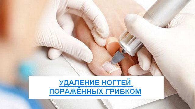удаление ногтей пораженных грибком