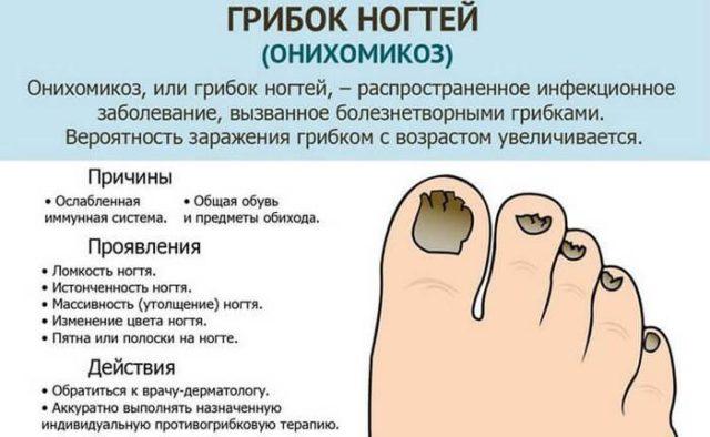 грибок ногтей от чего возникает