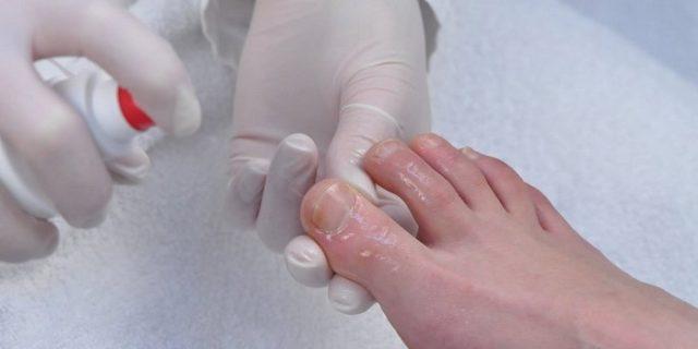 грибок ногтей возможно ли вылечить