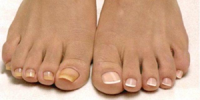 грибок ногтей на ногах если не лечить какие последствия
