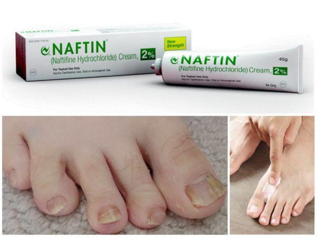 нафтифин от грибка ногтей отзывы