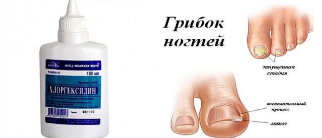 Лечение грибка ногтей Хлоргексидином