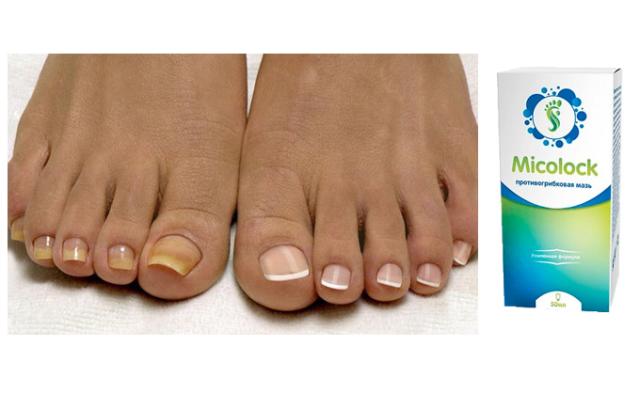 лекарство от грибка ногтей миколог