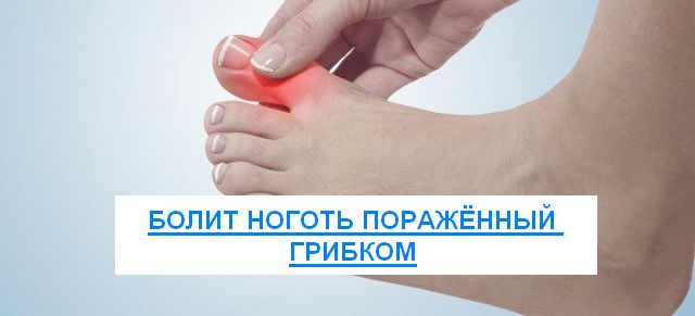 может ли от грибка болеть ноготь