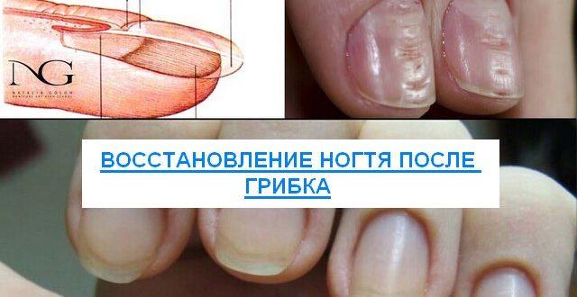 восстановление ногтя после грибка