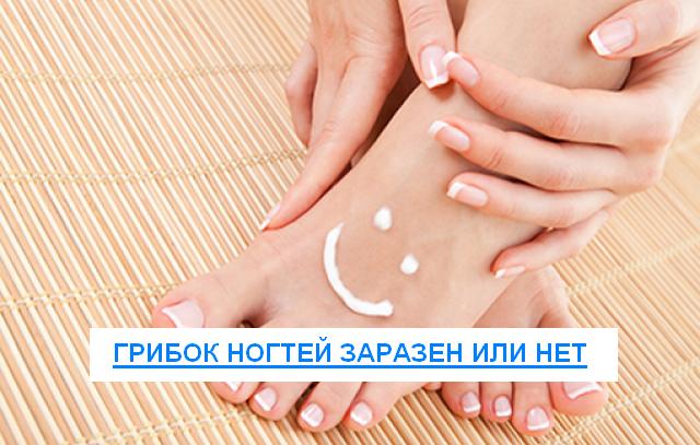 Как передается грибок ногтей 7