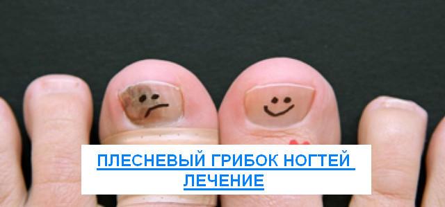 плесневый грибок ногтей лечение