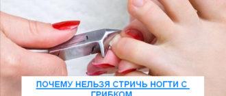 почему нельзя обрезать ногти пораженные грибком