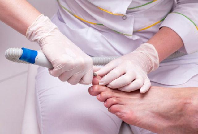 грибок ногтя болит