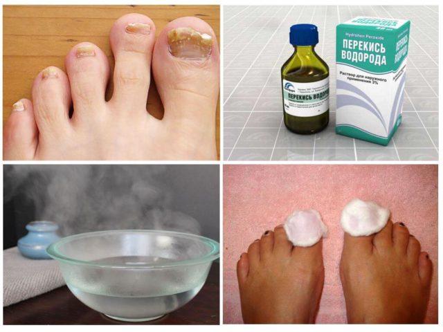 лечение грибка ногтей по методу неумывакина