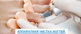 аппаратная чистка ногтей от грибка