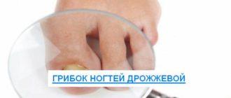 грибок ногтей дрожжевой