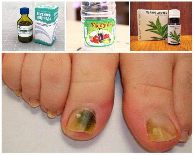 грибок ногтей дрожжевой на ногах чем лечить