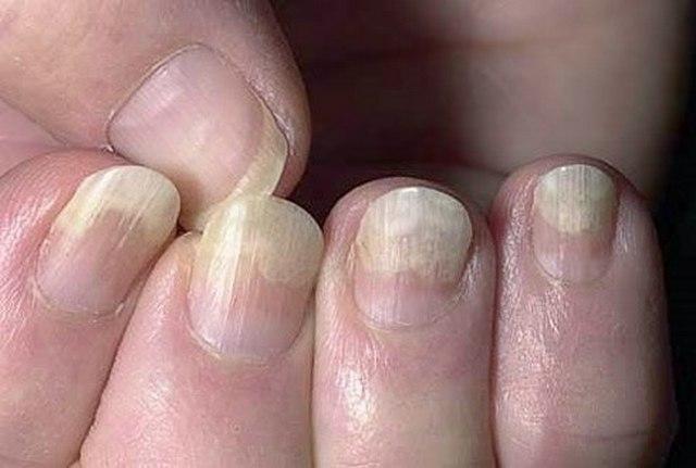 лечение ногтей рук грибка