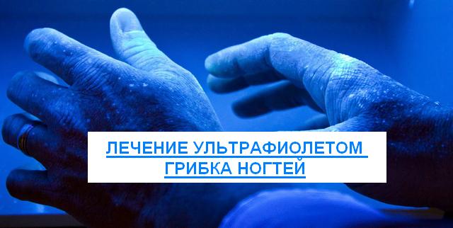 лечение ультрафиолетом грибка ногтей