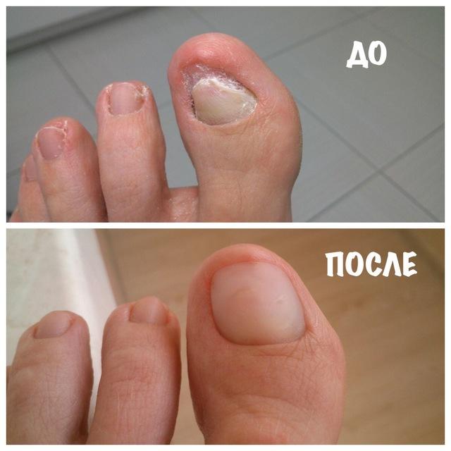 протезирование ногтя при грибке