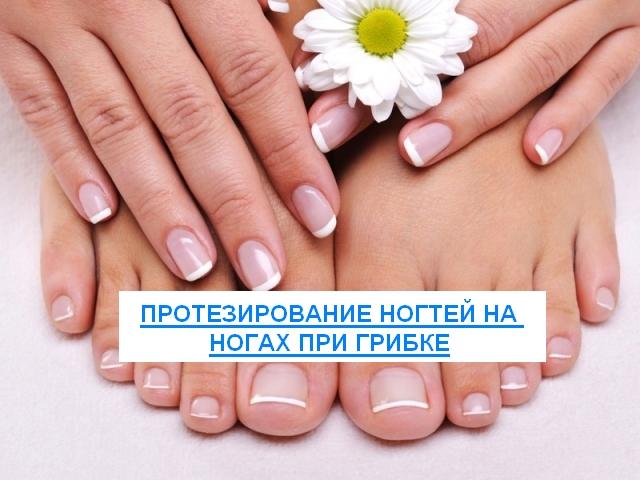 протезирование ногтей на ногах при грибке