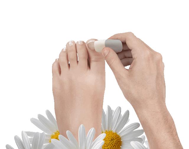 международный протокол лечения грибка ногтей