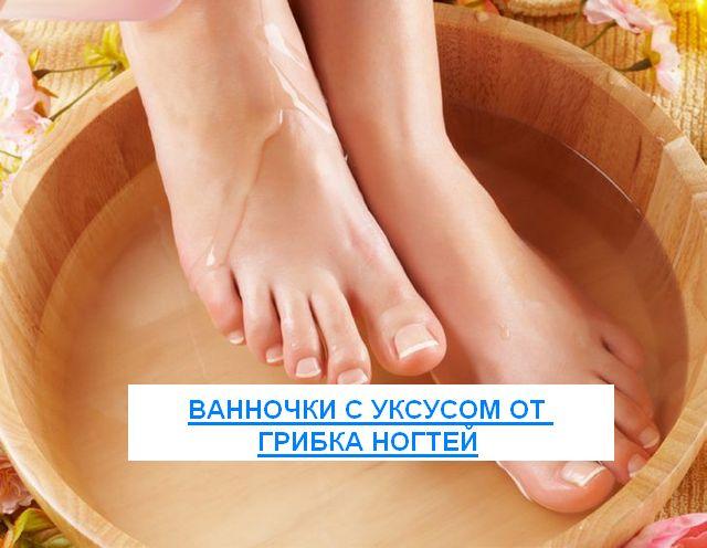 Ванночки с уксусом от грибка ногтей