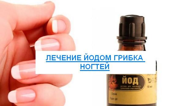Лечение йодом грибка ногтей