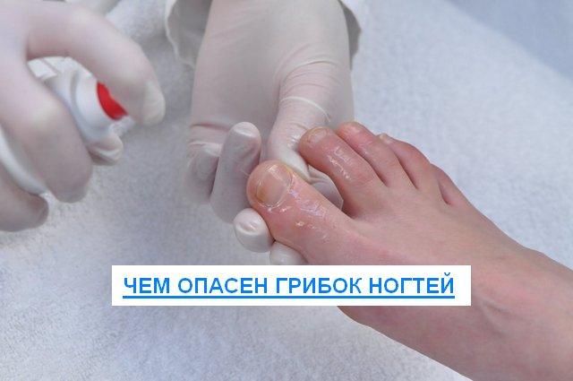 грибок ногтей чем опасен