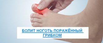 болит ноготь пораженный грибком