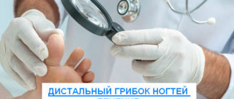 дистальный грибок ногтей лечение