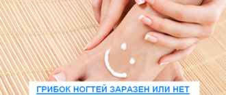 грибок ногтей заразен или нет