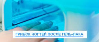 грибок ногтей после гель-лака