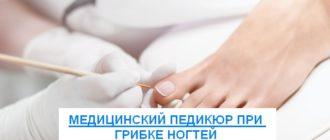 лечебный педикюр при грибке ногтей