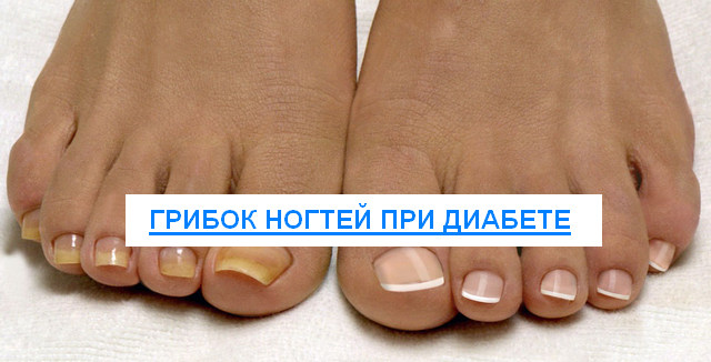 грибок ногтей при диабете лечение